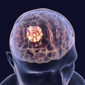 A scientific image of the top of a person's head with a glowing yellow tumour inside the brain area with a black background.
