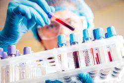 Scientist picks up vile of blood to look at it.