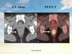 A side by side comparison of cancer as seen by a PET/CT vs CT scan.