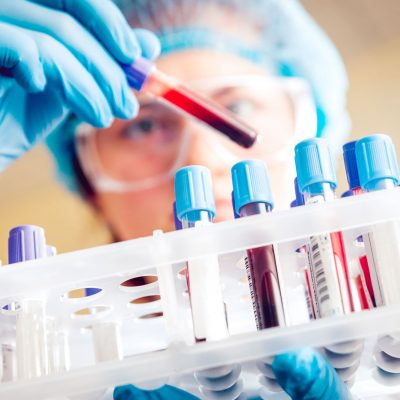 A scientist with googles looks at different vials of blood.