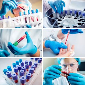 A composite image of close-up photos of blood samples.